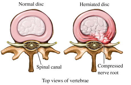 what is a herniated disc? - three rivers orthopedics, Human Body