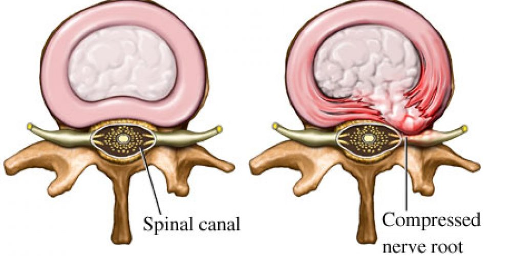 What is a Herniated Disc?