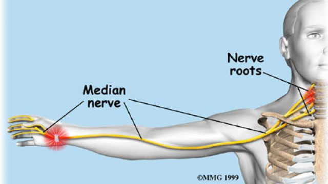 Carpal Tunnel Syndrome vs. Cervical Radiculopathy