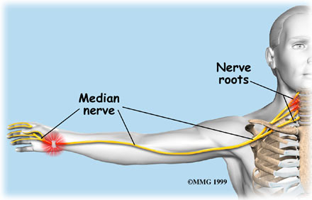 Carpal Tunnel Syndrome Vs Cervical Radiculopathy Three Rivers